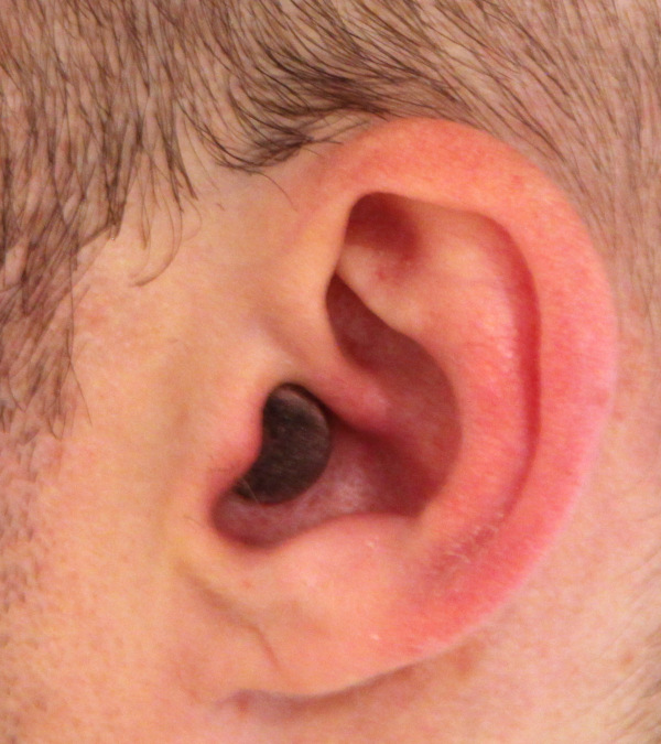 earplug cut and painted black in use