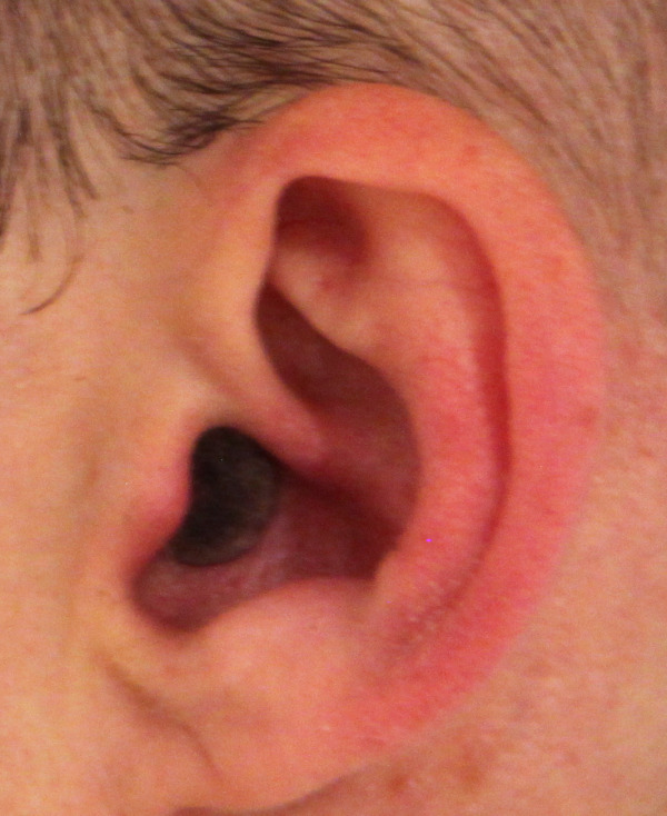 invisible earplug: cut and painted foam earplug and extra deep inserted