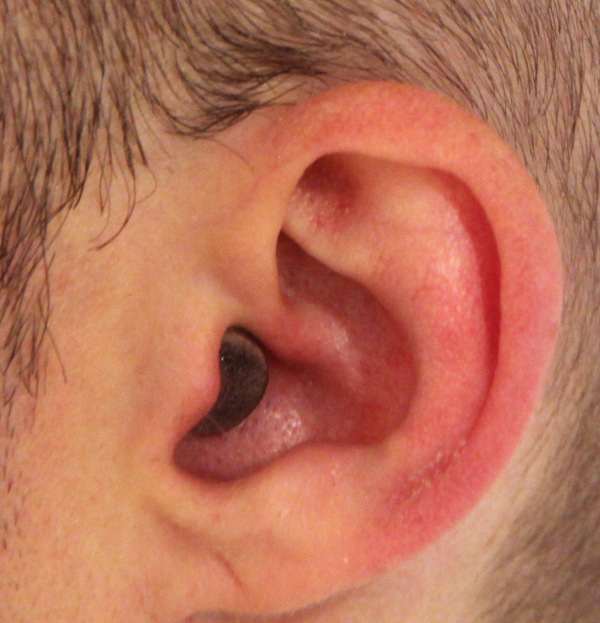 earplug cut and painted in use 2